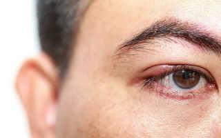 От чего появляется ячмень на глазу согласно приметам
