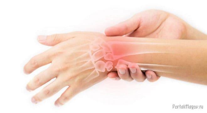 Больная кисть руки