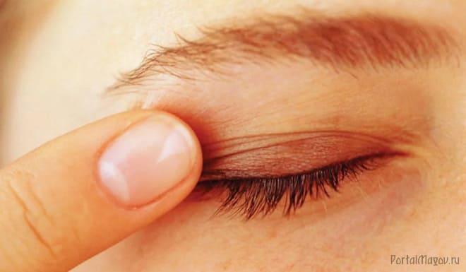 Почему так сильно чешется глаз